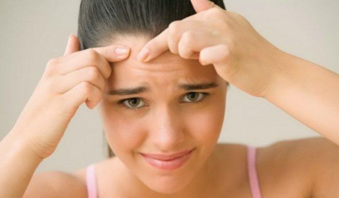 Лечение угревой сыпи у подростков в домашних условиях